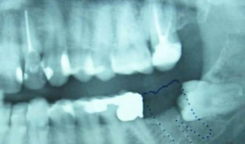 Απίστευτο: Ένα δόντι μεγάλωνε μέσα στα γεννητικά του όργανα! (Photo)