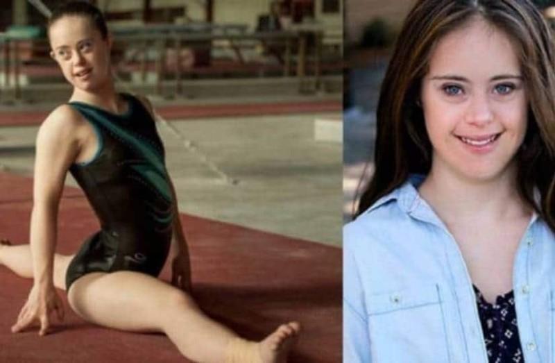 Δύναμη ζωής: Η πρωταθλήτρια της γυμναστικής με σύνδρομο Down που έγινε και μανεκέν!