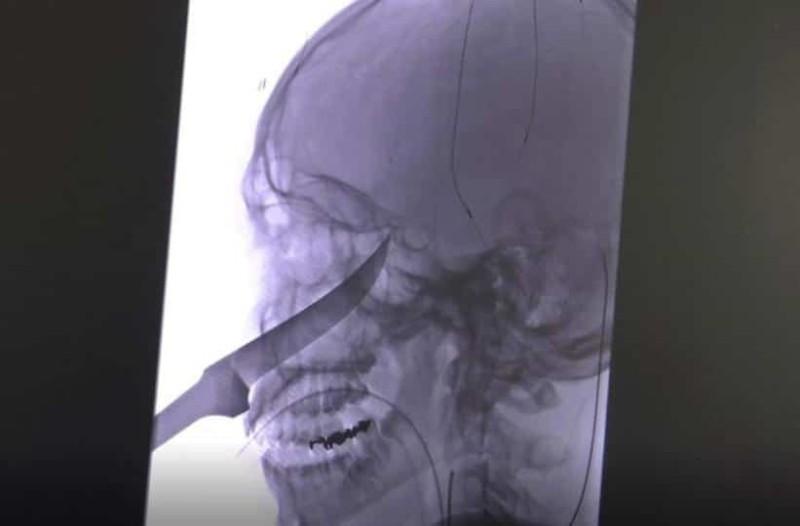 Ανατριχιαστικό: Το μαχαίρι έφτασε μέχρι τον εγκέφαλό του αλλά επέζησε!
