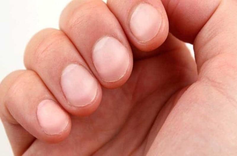 Τι σημαίνουν τα λευκά σημάδια στα νύχια;
