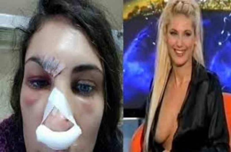 Θύμα άγριου ξυλοδαρμού από τον σύντροφό της έπεσε το κορίτσι του Θέμου Αναστασιάδη! (photo)