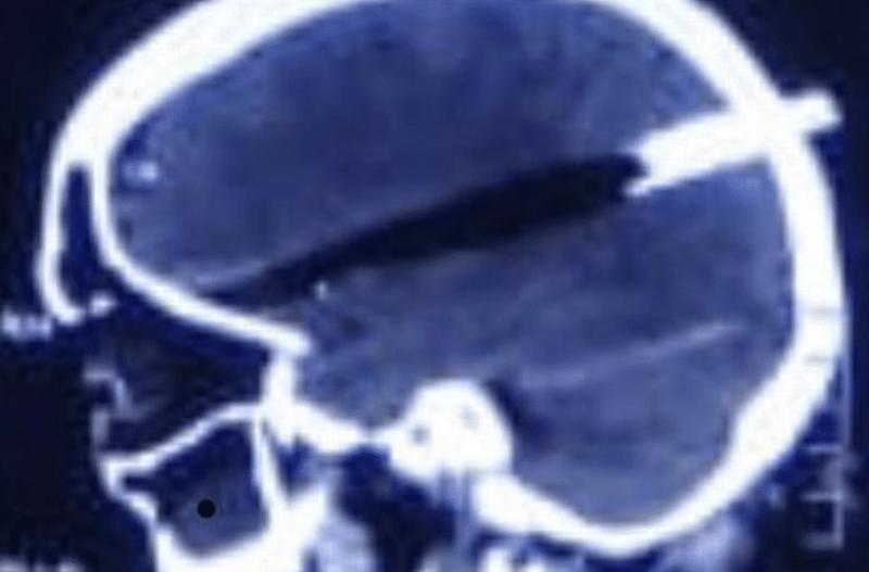 Φρίκη: Της καρφώθηκε το καπάκι της κατσαρόλας στο κεφάλι! (photos)