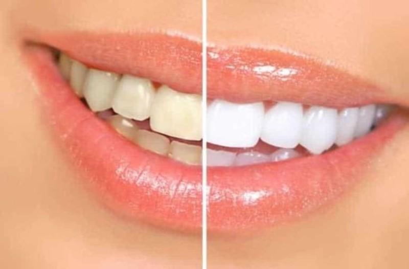 Πως να κάνετε λεύκανση δοντιών μόνοι σας!