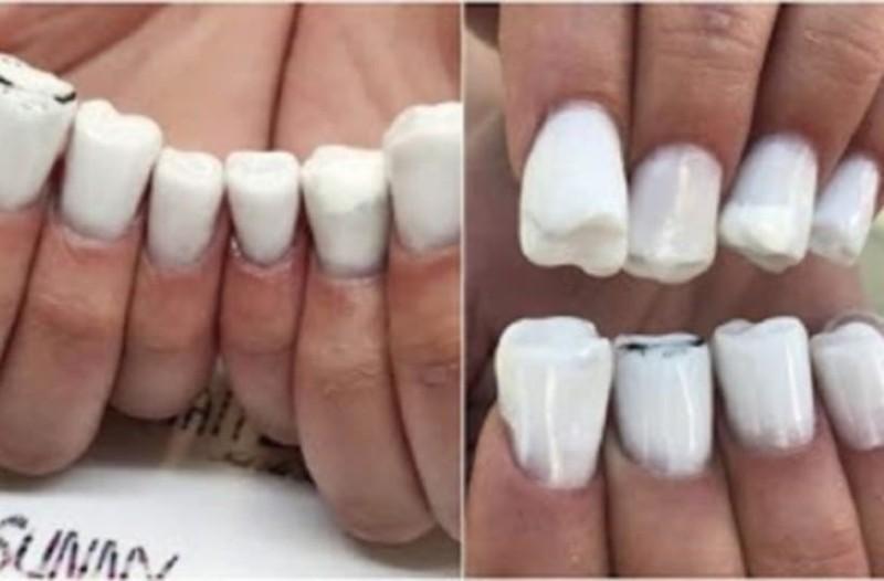Ήρθαν τα νύχια σε σχήμα δοντιών και είναι η πιο άσχημη μόδα που βγήκε ποτέ!