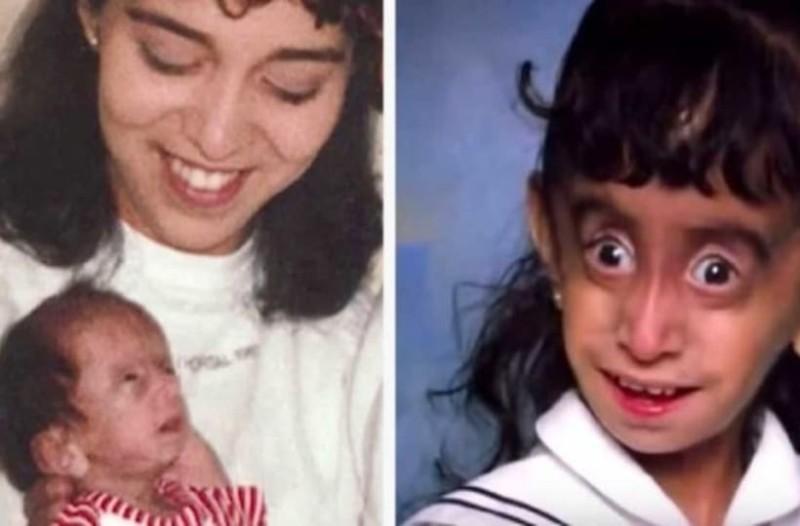 Στο σχολείο την φώναζαν «κακάσχημο τέρας» 25 χρόνια μετά, τους αποστομώνει με τη νέα της εμφάνιση (photo-video)