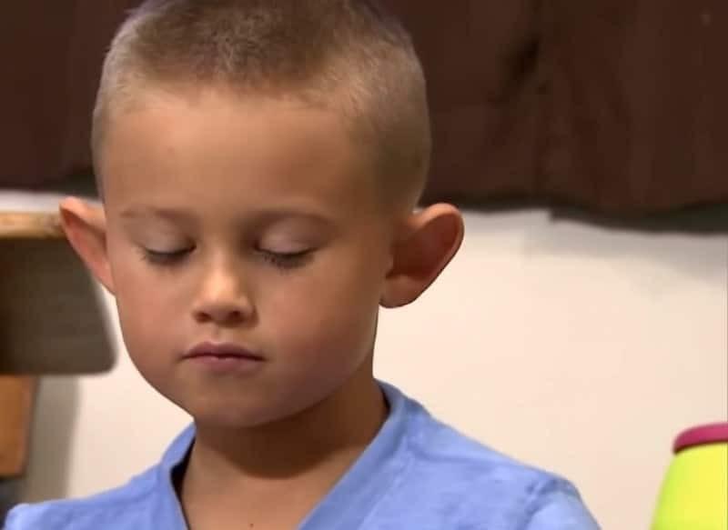6χρονος κάνει πλαστική επέμβαση και γίνεται αγνώριστος - Επί χρόνια δεχόταν bullying για τα αυτιά του που έμοιαζαν με ξωτικού