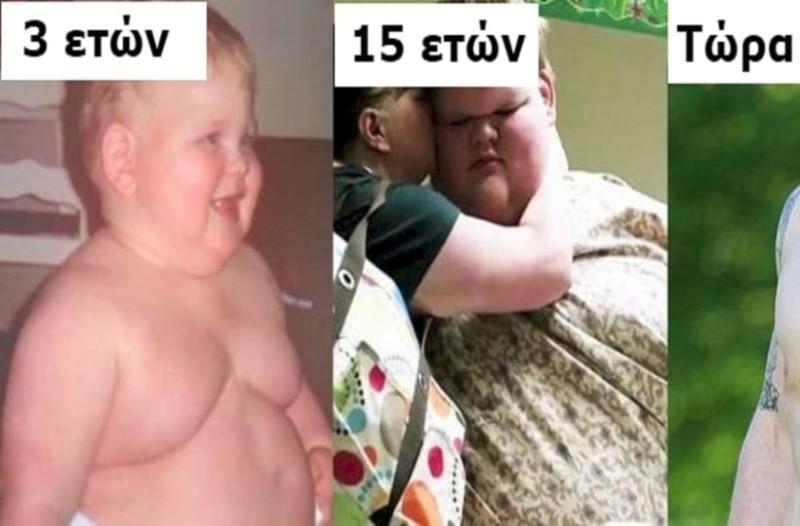 Όταν ήταν 15 ετών, ζύγιζε 320 κιλά και δυσκολευόταν να κουνηθεί - Σήμερα χάνει το μισό του βάρος και ξεκινά μια νέα ζωή!