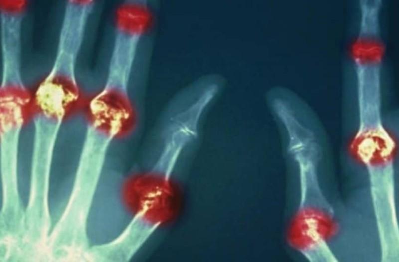 Ρευματοειδής αρθρίτιδα: Το μπαχαρικό που προκαλεί υποχώρηση των συμπτωμάτων!
