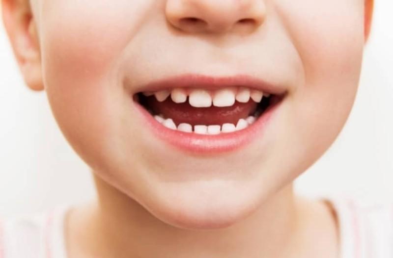 Απίστευτο! Δείτε τι έβγαλαν από το στόμα 7χρονου! (Video)