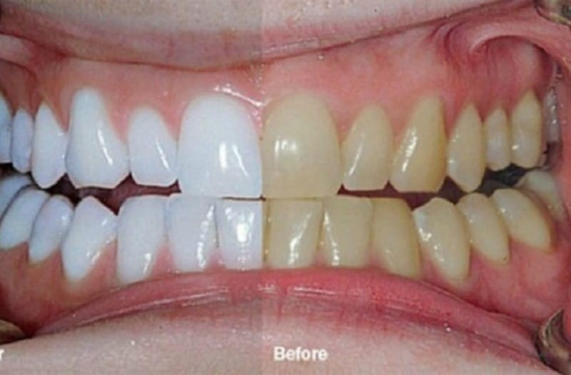 Ανακάτεψε 2 υλικά και τα έβαλε στα δόντια του - Το αποτέλεσμα; Δεν υπάρχει!
