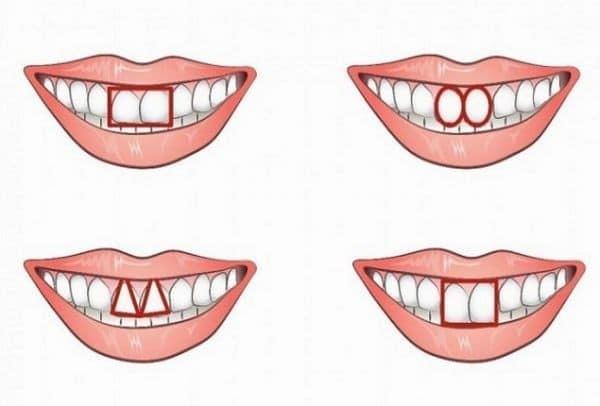 Ούτε καν το φανταζόσουν: Τι αποκαλύπτουν για κάποιον τα δυο μπροστινά του δόντια;