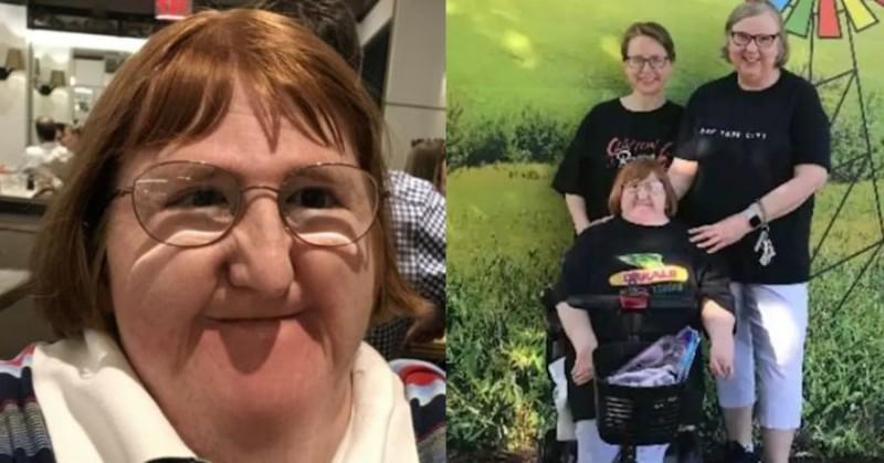 Η απάντηση μιας γυναίκας με αναπηρία όταν την προσέβαλαν για την εμφάνιση της