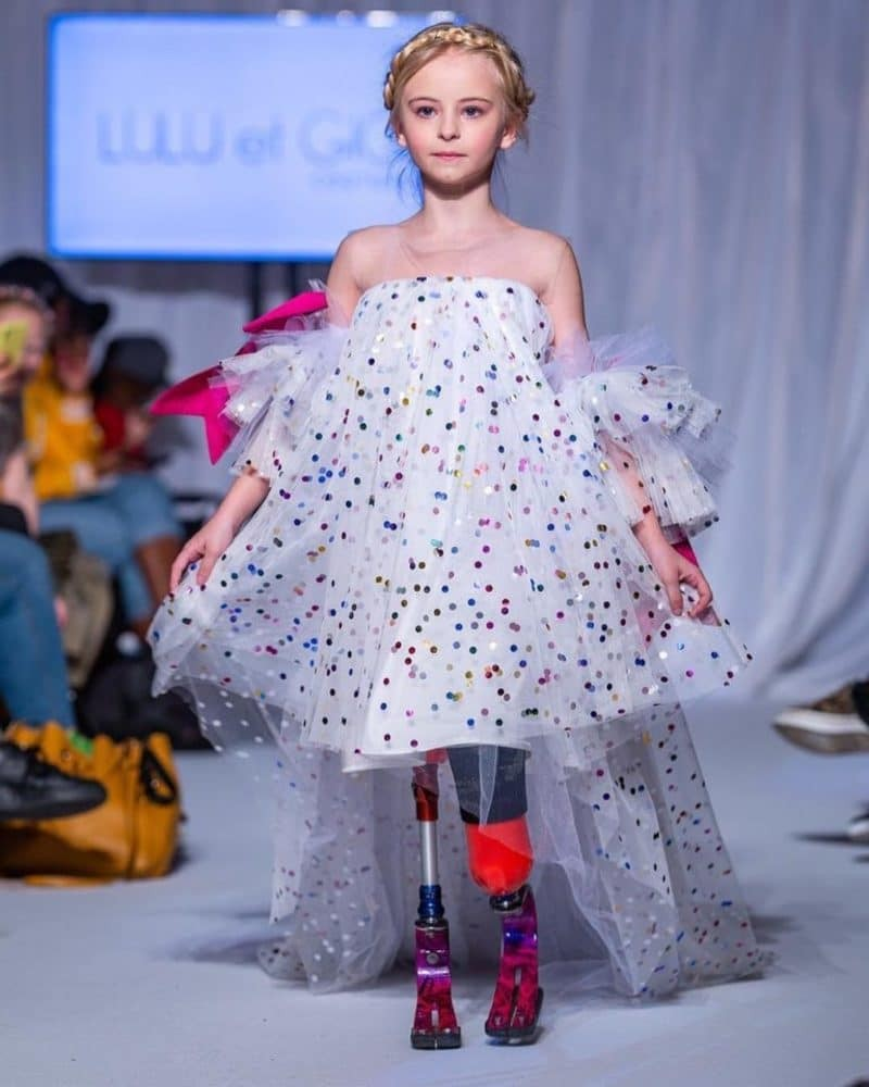Παγκόσμιος θαυμασμός: 9χρονη με διπλό ακρωτηριασμό στην εβδομάδα μόδας για παιδιά!