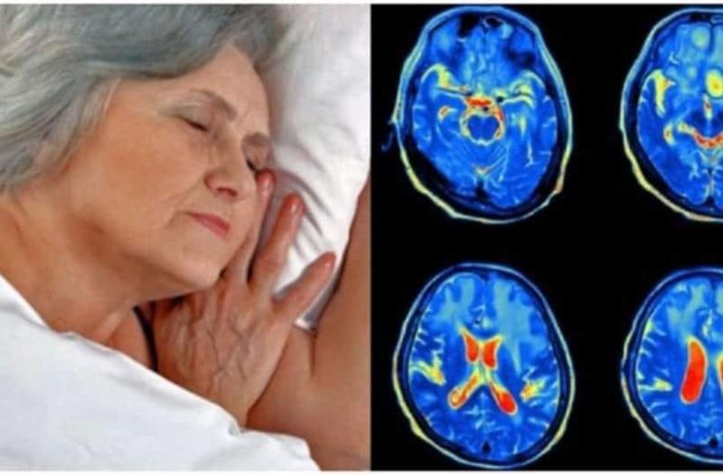 """Νυχτερινός ύπνος: Το """"αθώο"""" σύμπτωμα που αποτελεί προάγγελο για Αλτσχάιμερ"""