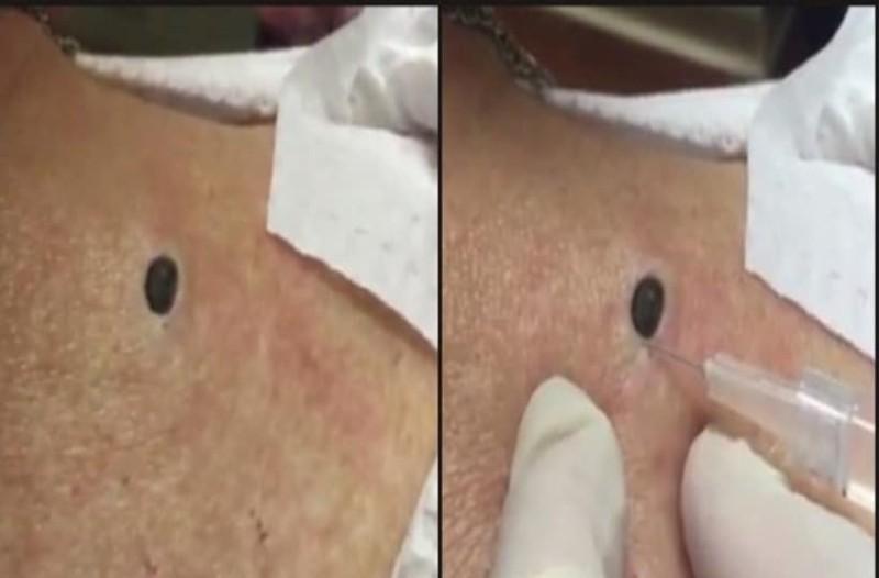 Όλη της τη ζωή είχε αυτό το μαυράκι στην πλάτη! Η στιγμή της αφαίρεσής του θα σας «κόψει» τα πόδια! (Video)