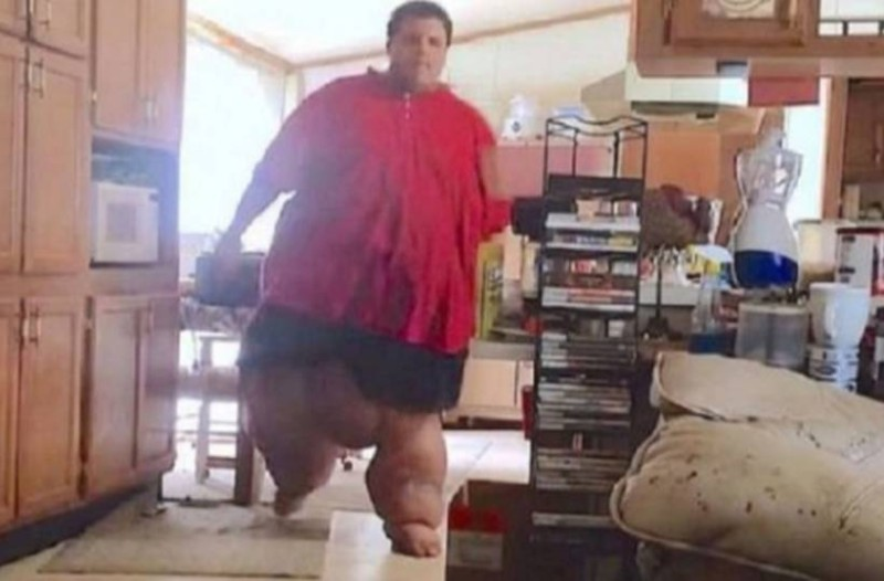 Στα 28 του ζύγιζε 320 κιλά! Αν δείτε πως είναι σήμερα θα πάθετε πλάκα! (Video)