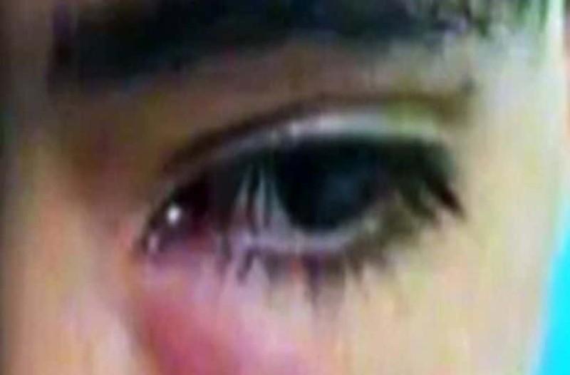 Φρίκη: Δείτε τι κρυβόταν στο μάτι του για ένα μήνα! (Video)