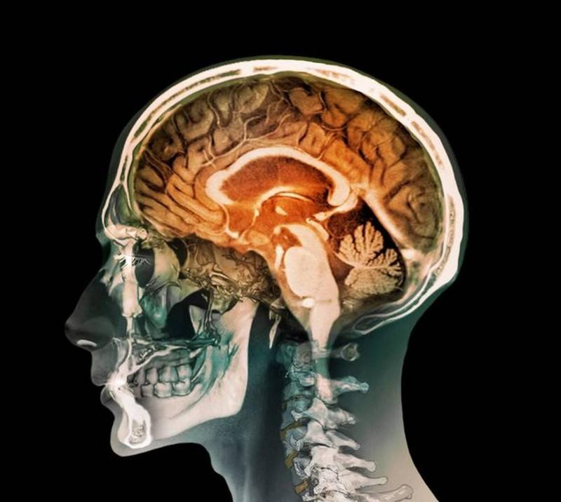 Δείτε τι είχε ένας άνδρας στον εγκέφαλο του!