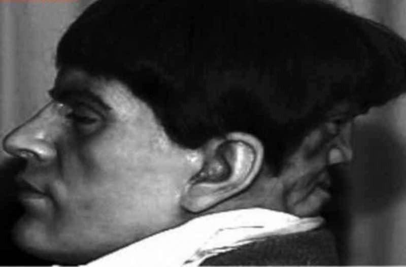 Τρομακτικό: Η απίστευτη ιστορία του ανθρώπου που είχε δύο πρόσωπα!