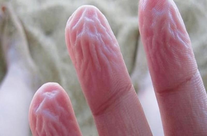 Να γιατί ζαρώνουν τα δάχτυλά σας μέσα στο νερό! Δεν είναι επειδή
