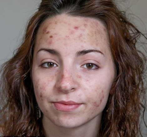 Kατάφερε να καταστρέψει το πρόσωπό της ξύνοντας το 6 ώρες την ημέρα!