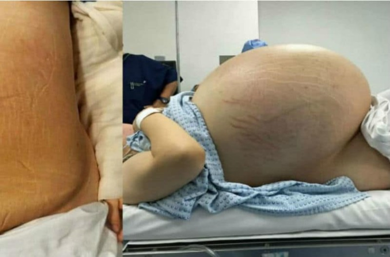 Γυναίκα μοιάζει να είναι έγκυος σε πεντάδυμα, μετά βλέπει την τομογραφία και δεν μπορεί να πιστέψει στα μάτια της!