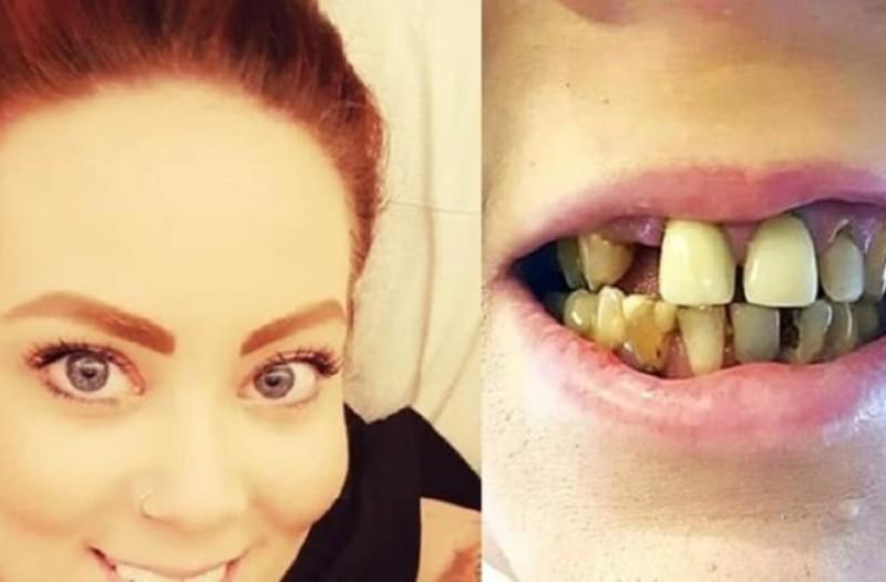 Γυναίκα αποφάσισε να φτιάξει τα σάπια δόντια της και το αποτέλεσμα είναι εξωπραγματικό!