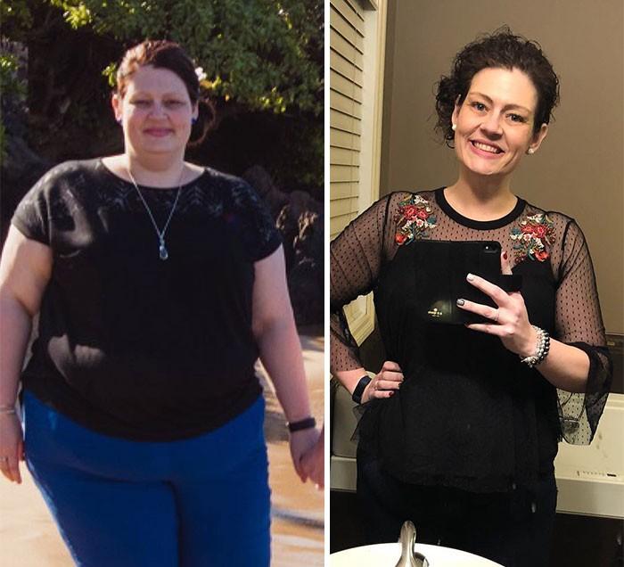 Σοκ: Γυναίκα έχασε 68 κιλά σε δύο χρόνια κάνοντας μόνο αυτά τα 3 πράγματα!