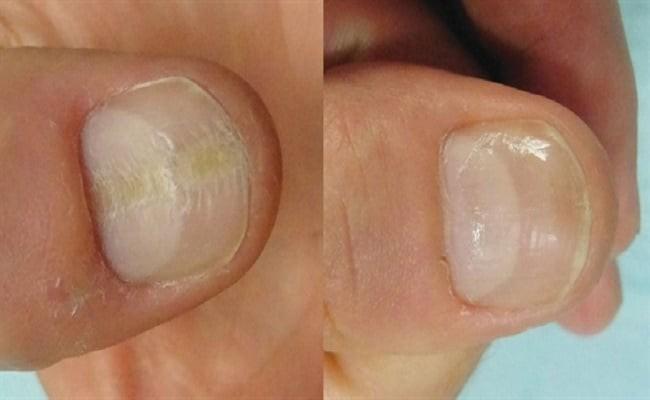 Νύχια υγεία