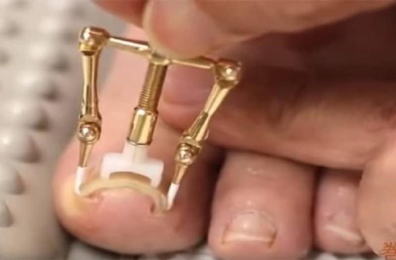 Νύχι που μπαίνει στο δέρμα: Δείτε πώς οι Ιάπωνες βρήκαν την λύση [Βίντεο]
