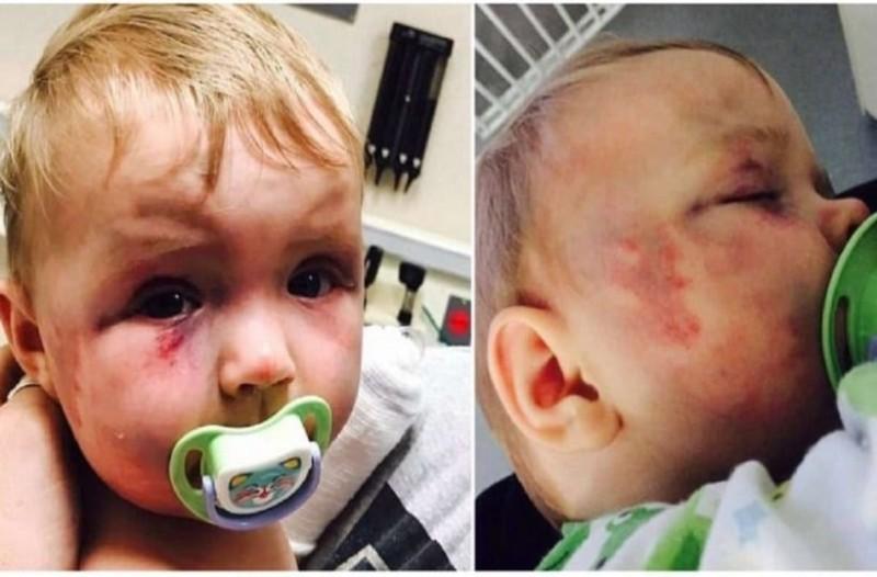 Θυμάστε το μωράκι που δέχθηκε επίθεση από την ίδια του τη μάνα; Δείτε πως είναι σήμερα και θα δακρύσετε!