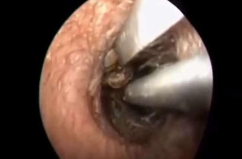 Πήγε στον γιατρό γιατί τον πονούσε το αυτί του: Ανατρίχιασε με αυτό που βρήκε μέσα! (photo)