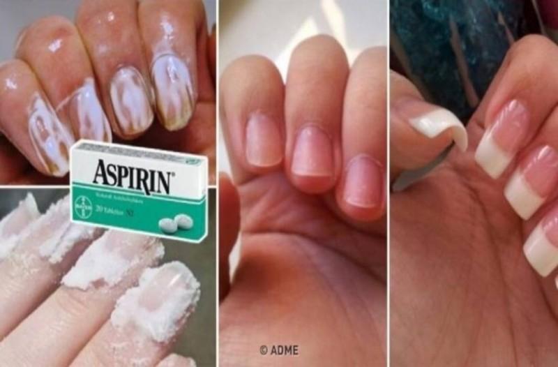 Λιώνει 2 ασπιρίνες μέσα σε λίγο νερό και απλώνει το μείγμα στα νύχια της! το αποτέλεσμα; Άκρως εντυπωσιακό!