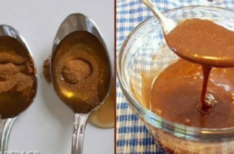 Μέλι και κανέλα: 17+1 χρήσεις!