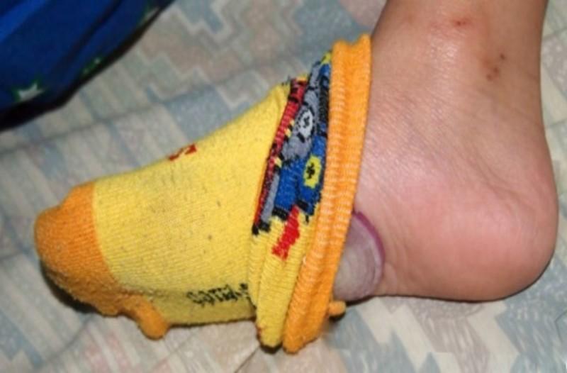 Έβαλε ένα κρεμμύδι μέσα στην κάλτσα της και έπεσε για ύπνο... Το πρωί συνέβη το απίστευτο!