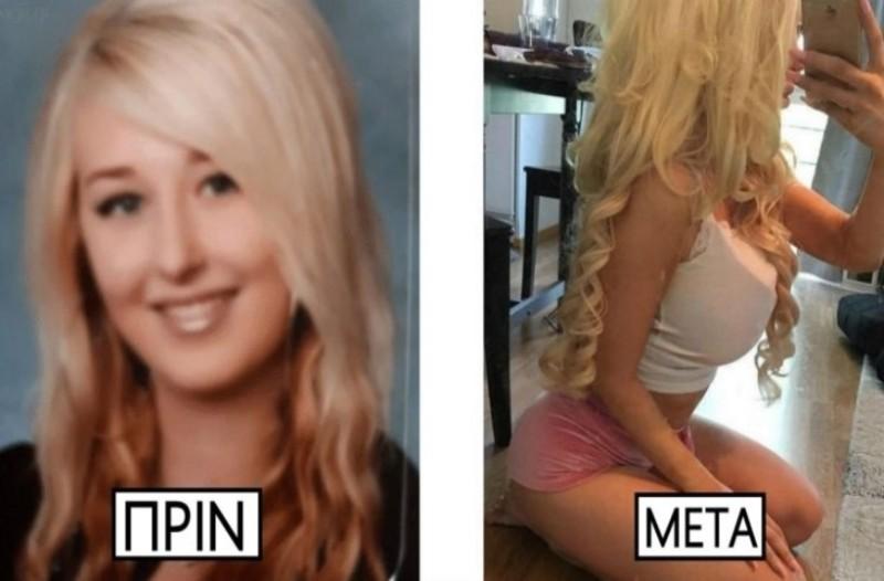 22χρονη ξόδεψε 60.000 ευρώ σε πλαστικές! Ήθελε να μοιάσει με την Barbie, αλλά... (photos)