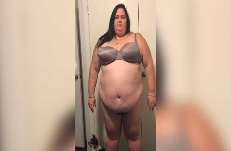 Ζύγιζε 183 κιλά και οι γιατροί δεν της έδιναν ελπίδα ζωής! Της είπαν ότι θα πέθαινε πριν τα 40 αλλά...έγινε κάτι απρόσμενο!