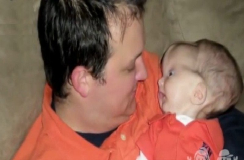 Όταν γεννήθηκε το κεφάλι του είχε πολλά εξογκώματα...20 μήνες μετά δεν φανταζόταν κανείς τι θα συνέβαινε!