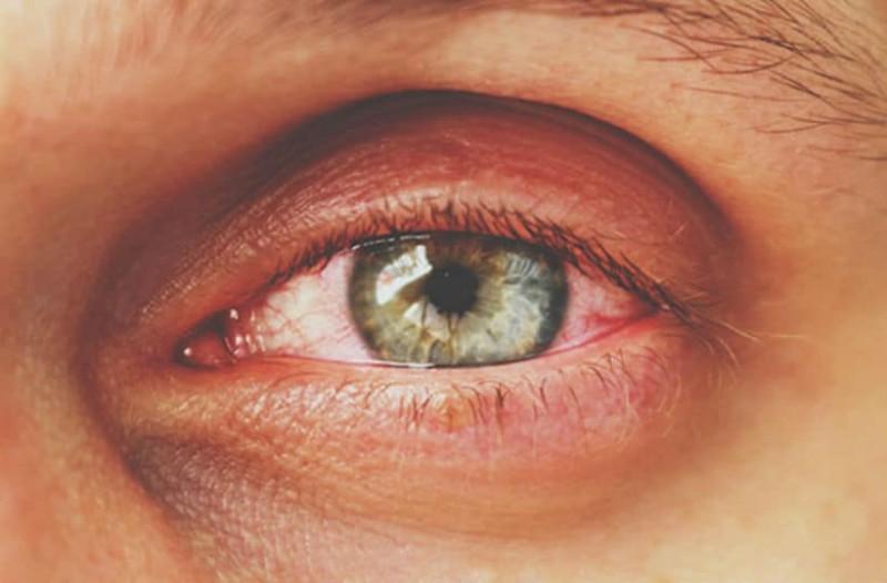 Πήγε στο γιατρό γιατί την πονούσε το μάτι της και είχε πρηστεί! Αυτό που βρήκαν μέσα πραγματικά θα σας σοκάρει!