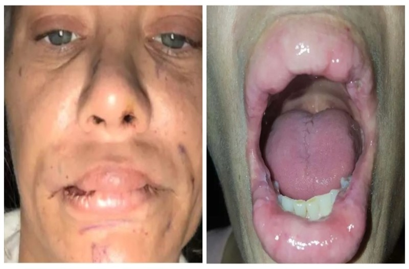 Πήγε να φουσκώσει τα χείλη της με σιλικόνη αλλά κάτι δεν πήγε καλά...Όταν δείτε το αποτέλεσμα θα φρίξετε!