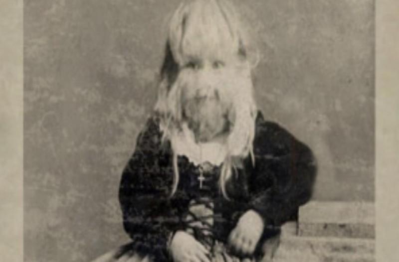 Όταν ήταν 5 χρονών οι τρίχες στο πρόσωπό της όλο και μεγάλωναν...Αυτό που της έκαναν οι γονείς της ξεπερνά κάθε φαντασία!