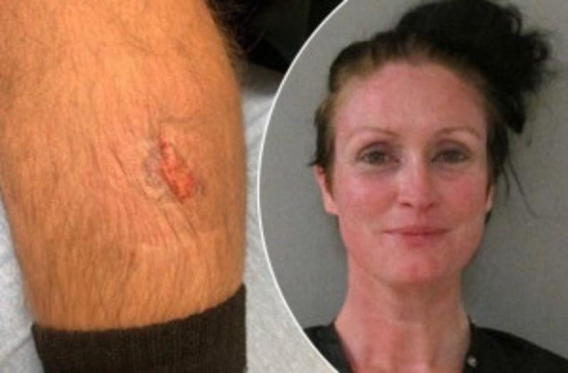 Αδιανόητο: Γυναίκα δαγκώνει το πόδι αστυνομικού την ώρα της σύλληψης!