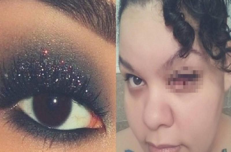 Τραγικό: Έμεινε τυφλή στο αριστερό της μάτι από κάτι που όλες οι γυναίκες χρησιμοποιούν
