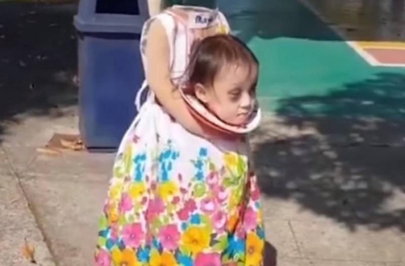 2χρονο κοριτσάκι με την πιο σοκαριστική εικόνα που έχεις δει ποτέ!