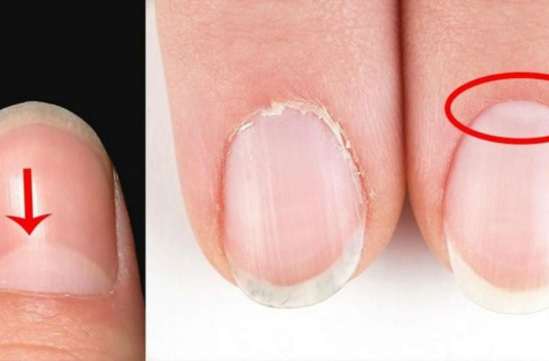 Προσοχή: Έχετε αυτά τα μισοφέγγαρα στα νύχια σας; Δείτε τι σημαίνουν