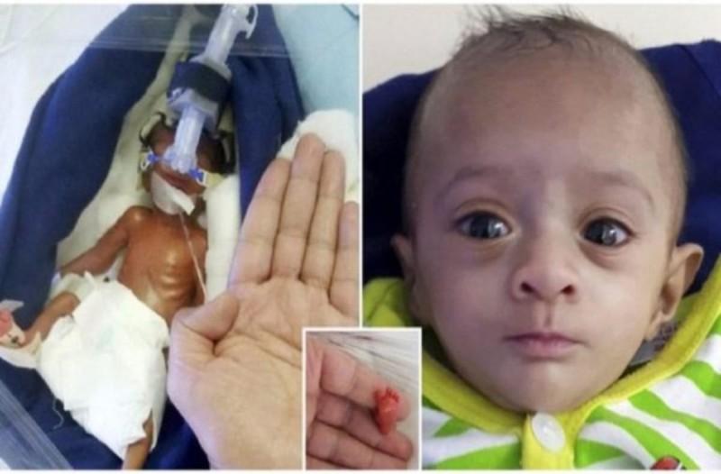 Μωρό που όταν γεννήθηκε ζύγιζε λιγότερο από μία σοκολάτα έγινε το μικρότερο μωρό που κατάφερε ποτέ να επιβιώσει