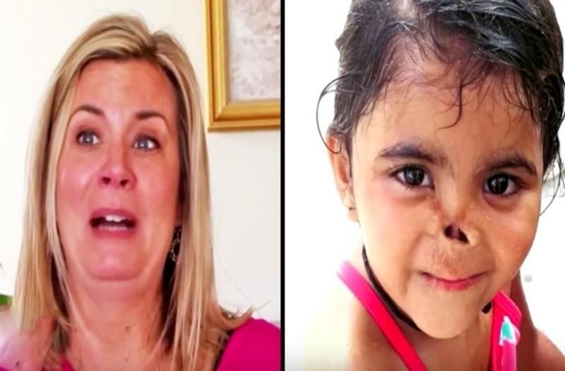 Όταν ήταν 5 χρονών ζώα κατασπάραξαν την μύτη της! Τότε μια γυναίκα την υιοθέτησε και έγινε κάτι που θα σας σοκάρει...