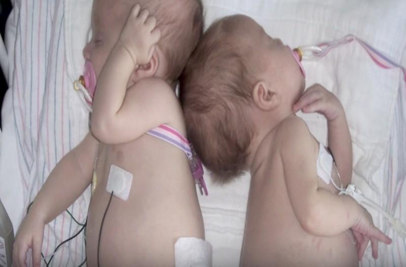 Δίδυμα 2μηνών διαγνώστηκαν από μια σπάνια μορφή καρκίνου...8 χρόνια μετά η εικόνα τους συγκινεί!