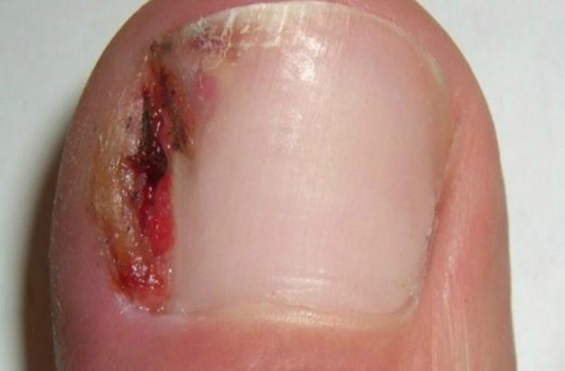Αν μπαίνουν τα νύχια σας μέσα στο δέρμα και έχετε παρανυχίδες κάντε αυτό το κόλπο - Θα σας απαλλαγείτε μια για πάντα