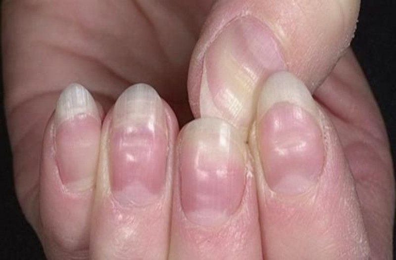 Σταματήστε να βγάζετε μόνες σας το ημιμόνιμο μανικιούρ από τα νύχια σας! Μπορεί να...